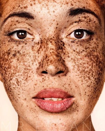 The-beauty-of-the-freckles-by-the-photographer-Brock-Elbank-5a829b946c076__700