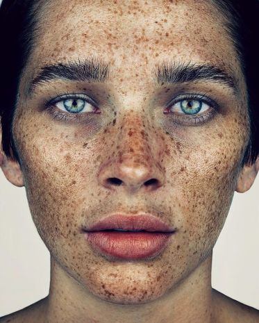 The-beauty-of-the-freckles-by-the-photographer-Brock-Elbank-5a829b97aa41b__700