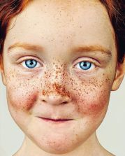 The-beauty-of-the-freckles-by-the-photographer-Brock-Elbank-5a829b9a870f8__700