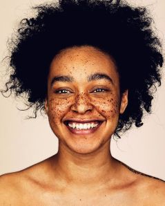 The-beauty-of-the-freckles-by-the-photographer-Brock-Elbank-5a829dfb1c47d__700