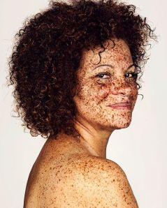 The-beauty-of-the-freckles-by-the-photographer-Brock-Elbank-5a829dfd63f01__700